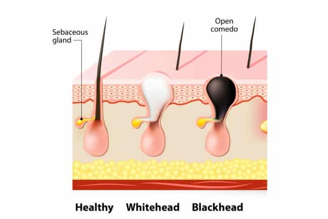 Types and Ways to Remove Blackheads