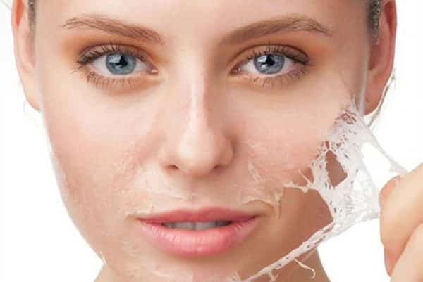 Smooth Skin Thanks to Chemical Peeling